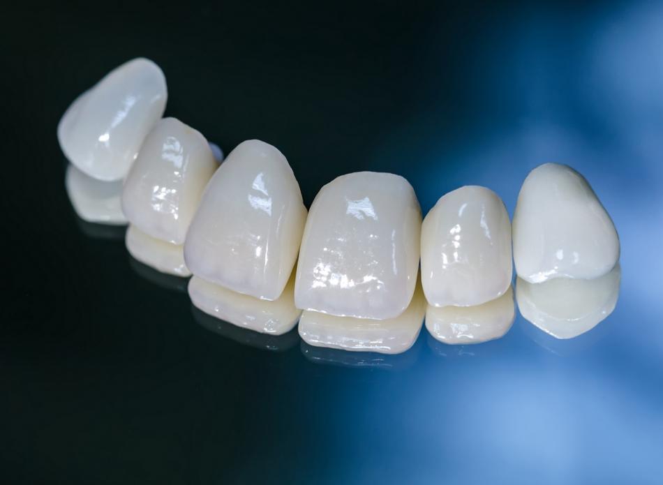 Сколько стоит металлокерамическая коронка на зуб?